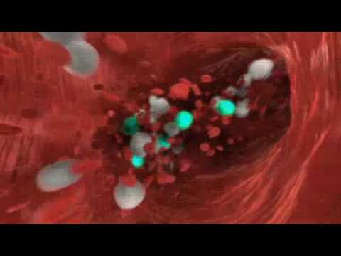 Dr. Faustman's BCG Trial info movie
