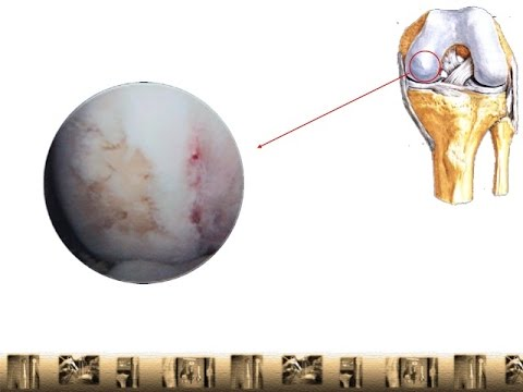 Knee Cartilage Repair With Tissue Engineered Scaffold To