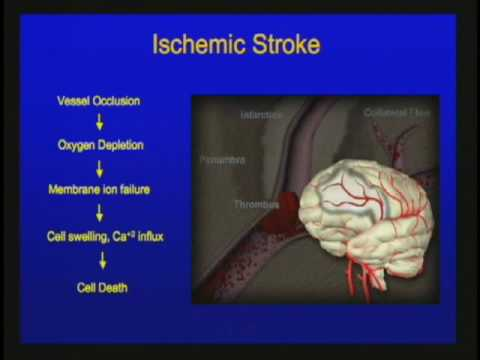 Vascular Disorders of the Central Nervous System