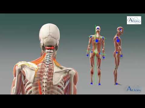 Причины возникновения межпозвонковой грыжи