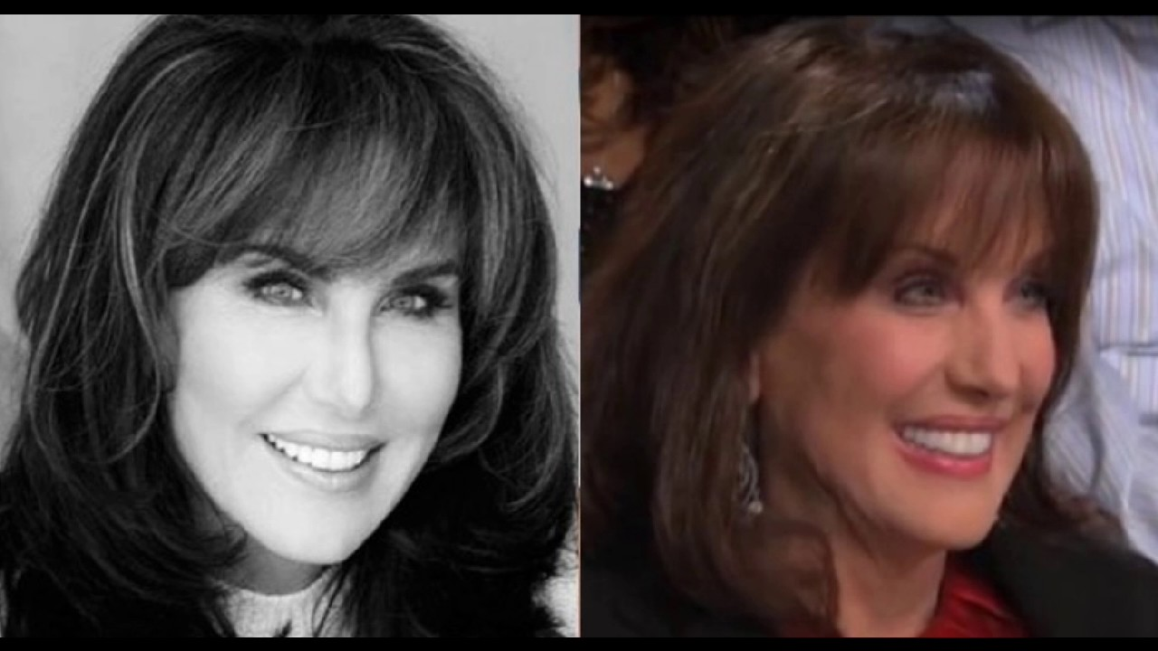Robin Mcgraw Plastic Surgery Before And After Youtube