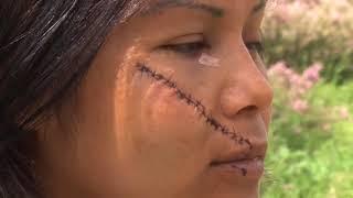 (Imágenes Fuertes) Machetean a mujer del rostro en San Miguel de Allende