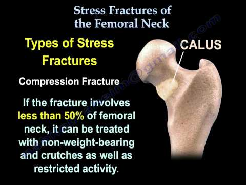 Stress Fractures Of The Femoral Neck - Everything You Need To Know - Dr. Nabil Ebraheim