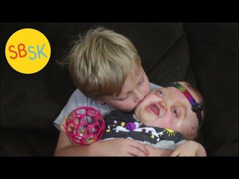 Emmy the Unicorn (Pfeiffer Syndrome)