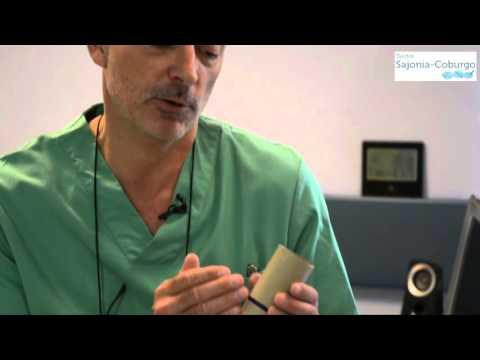 Fístula de ano ¿Cómo es su tratamiento?.2 - Dr. Kubrat Sajonia Coburgo