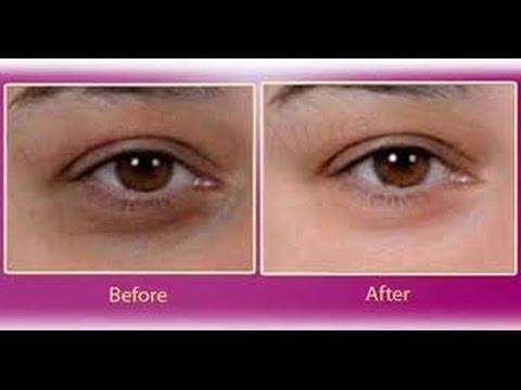 2 Beauty Tips For Dark Circles Under Eyed,Puffy Eye,Eye Bags آنکھوں کے سیاہ ہلکے دور