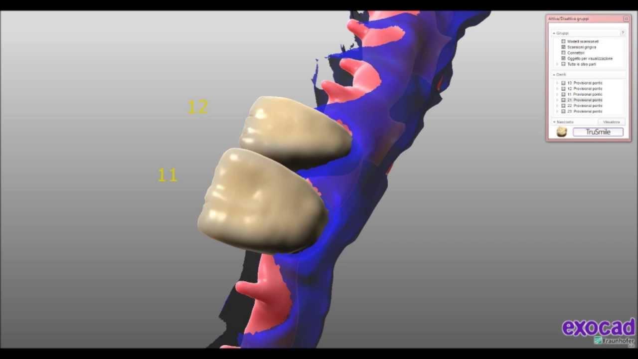 Prettau/IZIR style EXOCAD Implant Bridge | Dental Lab Network