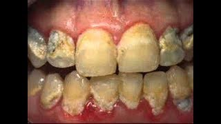 видео Желтый налет на зубах: причины появления и способы устранения