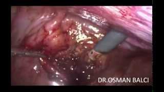 Laparoscopic right paravesical 20 cm hematoma evacuation by Dr Osman BALCI