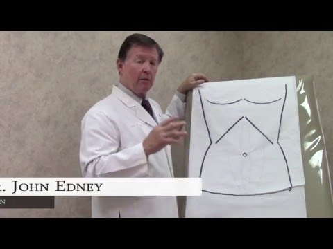 Tummy Tuck: A Step-by-Step Look