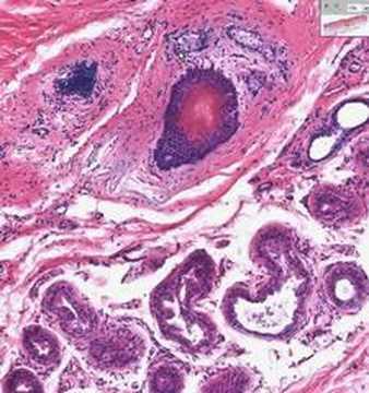 Shotgun Histology Skin Appendages - YouTube