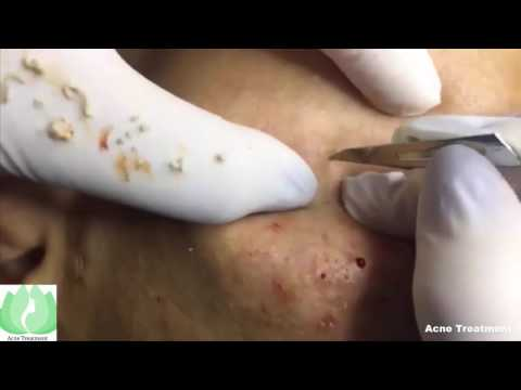 Deep Blackheads, Whiteheads And Pimples Extraction | Face Infection
