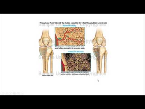 bone disorders and surgical procedures