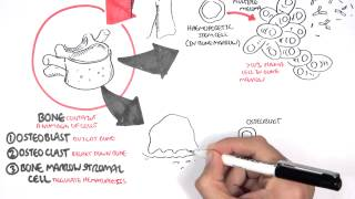 Medicine - Multiple Myeloma