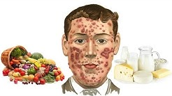 hqdefault - Pimples After Eating Spicy Food