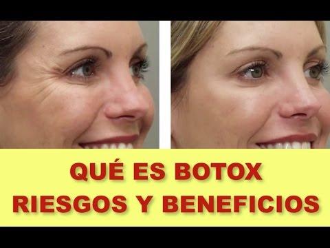 Botox en el cabello consecuencias