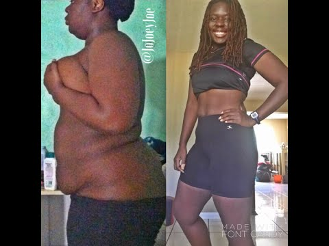 Amazing 96 Pound Weight Loss Transformation! (Before & After)