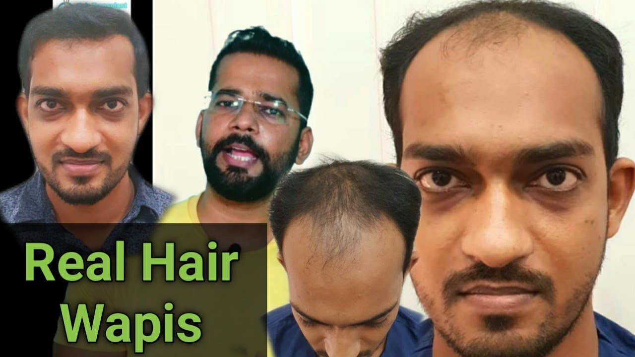 Case Study - 9 Months of Best Hair Transplant Results in Mumbai