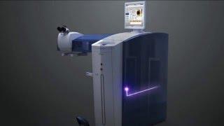 WaveLight LASIK Step 3: Programming the EX500 Laser