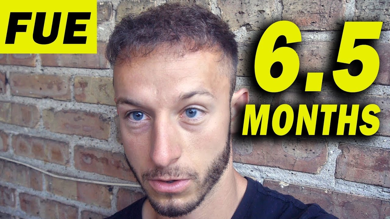 Fue Hair Transplant 6 5 Months Post Op Istanbul Turkey