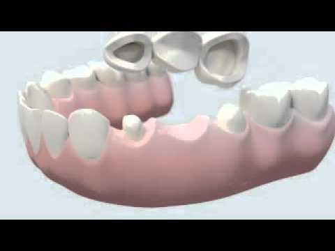 bridge dentaire céramique