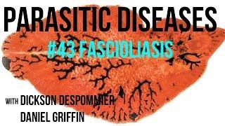 Parasitic Diseases Lectures #43: Fascioliasis