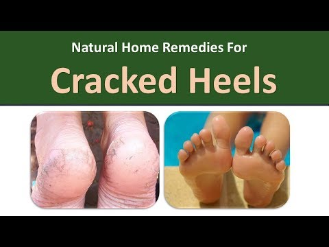 Home Remedies for Cracked Heels|Indian Lilac, Lemons