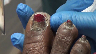 A nail trimming that was never published - thick fungal nails and calluses