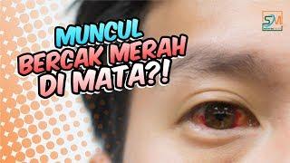 Astigmatisme, Gangguan Penglihatan yang Disebabkan oleh Cacat pada Lengkungan Lensa atau Kornea.