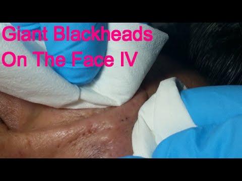 Giant Blackheads - Part IV- - YouTube