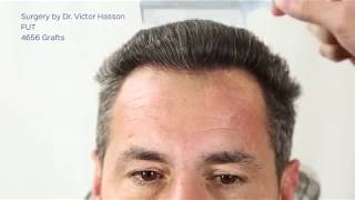 Hair Transplant Before And After | 4656 Hair Transplant Grafts