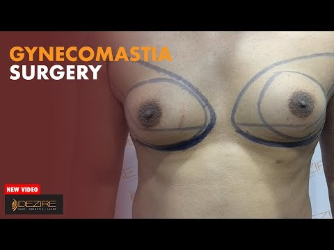 Gynecomastia (MAN BREASTS) : Man Boobs Reduction By Dr. Prashant Yadav At Dezire Clinic from YouTube · Duration:  6 minutes 39 seconds