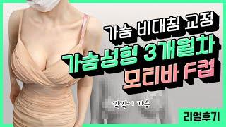 원데이 모티바 F컵 가슴성형 3개월차 소개팅 성공 결과…