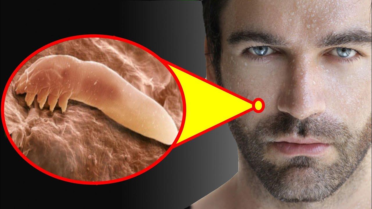 ये कीड़ा पूरी जिन्दगी आपके चेहरे रहता है   demodex mites in hindi   Adbhut  Fact - YouTube
