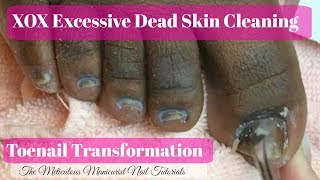 👣 XOX Excessive Never Ending Dead Skin Cleaning Big Toenail Transformation Pedicure Tutorial