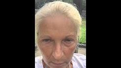 Instantly Ageless vs Preparation H by Cheryl Coco