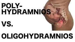 Polyhydramnios vs. Oligohydramnios