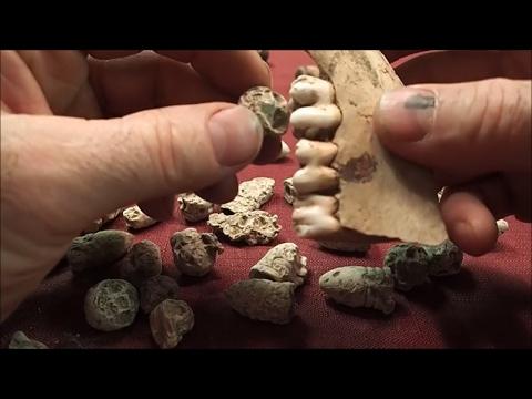 Civil War Hospital Pain Bullets: Busted