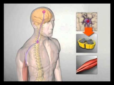 Lateralsklerose