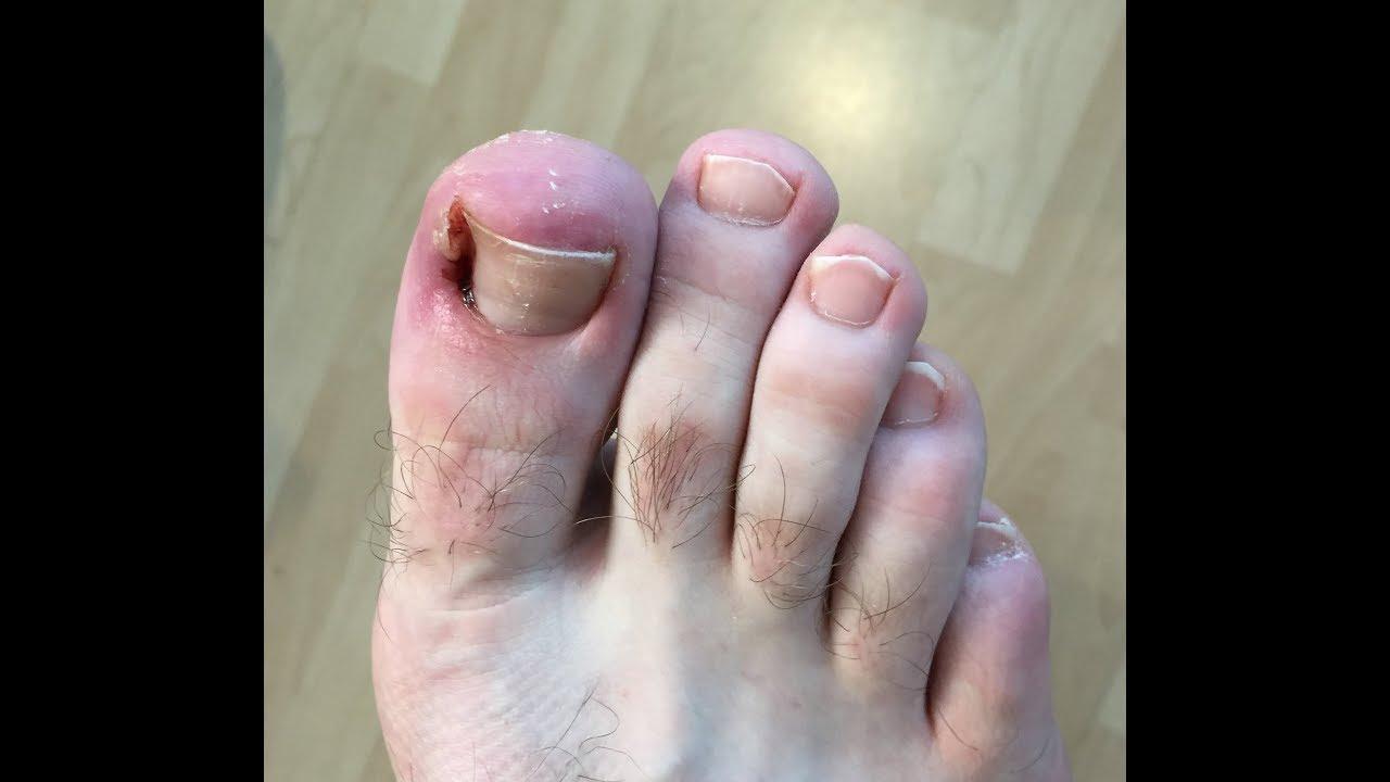 Nail Surgery at Dr Foot Podiatry Surgery