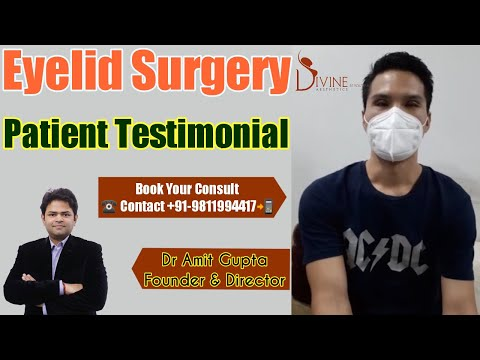 eyelid-surgery-patient-testimonial