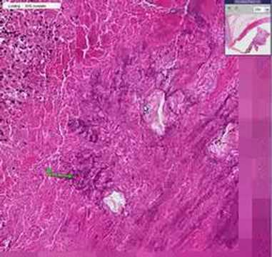 Histopathology Heart, aortic valve --Bacterial endocarditis