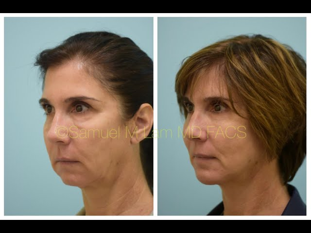 Dallas Deep-Plane Facelift & Extended Large Chin Implant 2 Years Out Testimonial with Photos