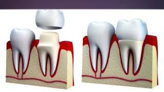 Best Root Canal At Florida Dental Care of Miller