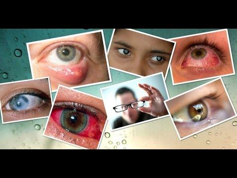 Болезни глаз. Симптомы и лечение
