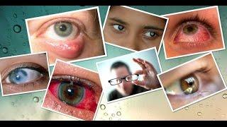 видео Базедова болезнь: фото, причины, симптомы, лечение