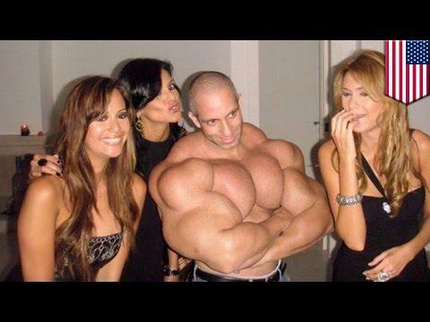 Ano ang Synthol, at bakit na-a-addict dito ang mga bodybuilders?