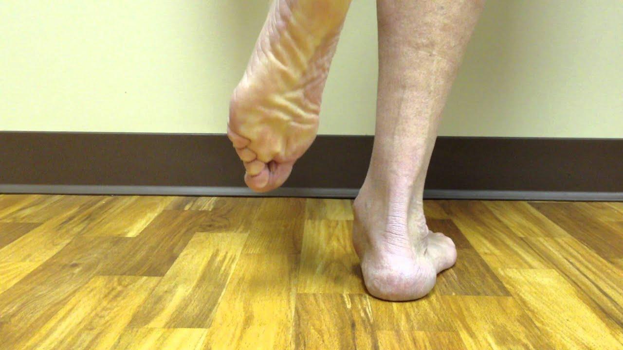 posterior tibial tendon dysfunction  post-treatment