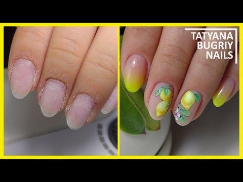 Грибок ногтей и выпадение волос - О грибке ногтей