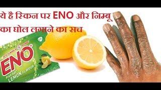 क्या है ENO और नींबू लगाने से गोरे हो जाने की सच्चाई! LIVE Test